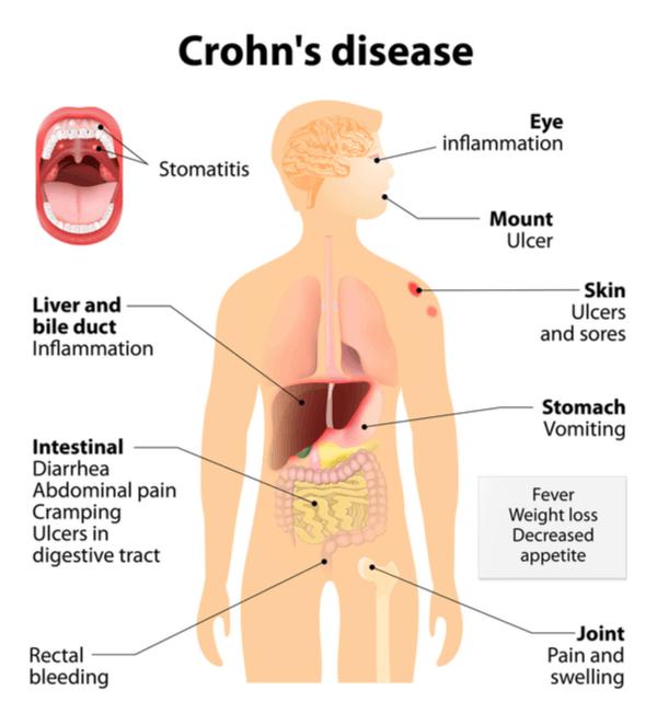 Crohn's disease half body of detailed anatomy chart diagram