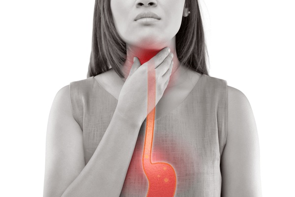 Gastroesophageal Reflux image woman holding red throat