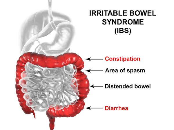 irritable bowel syndrome visual diagram medical view