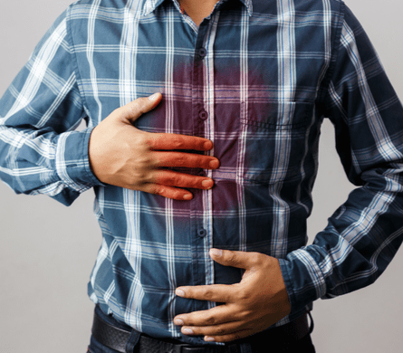 Gastroesophageal Reflux chest burning pains image