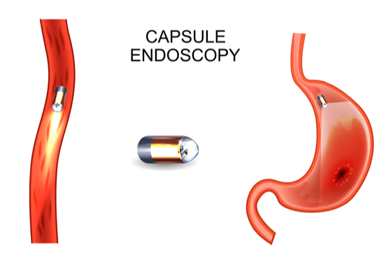 Visual Chart of Capsule Endoscopy view within stomach